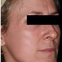 Skin Tightening/Wrinkle Reduction