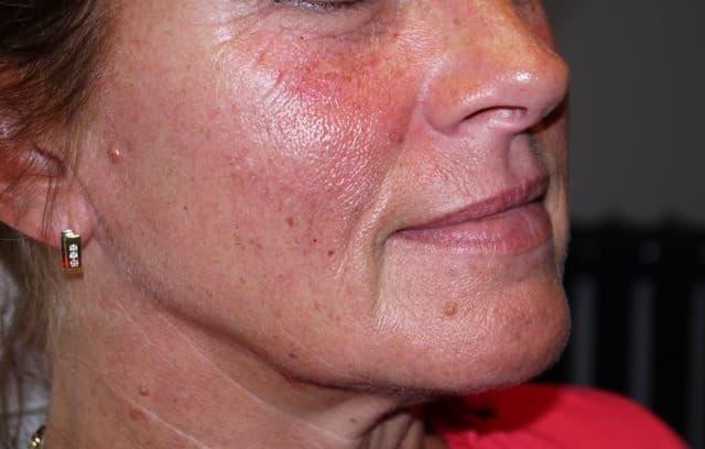 resultaat van lip fillers