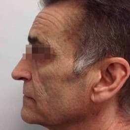 INFINI Lower Face Lifting