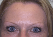 Botox Forehead After  Dysport