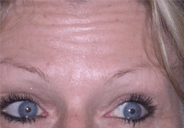 Botox Forehead Before  Dysport