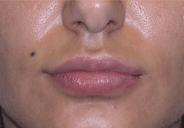 Lippen opvullen Lipvergroting