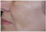 Fillers Wrinkles After