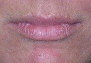 Lippen opvullen