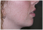 Fillers chin after