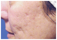 Acne Before Fractional Laser