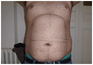 Belly Fat Removal Amsterdam
