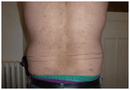 Back Fat Removal Amsterdam