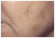 huid na fractional laser