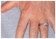 Skin Resurfacing Fractional Laser