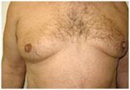 Breast Fat Removal Amsterdam