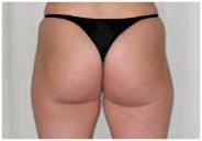 Hips After