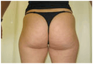 Hips Fat Removal Amsterdam