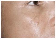 Melasma Fractional Laser