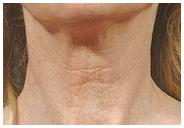 Skin Resurfacing, Age/Sunspots Wrinkles After