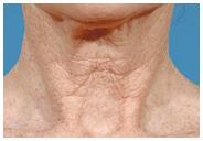 Skin Resurfacing, Age/Sunspots Wrinkles Before