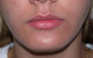 fillers lips before