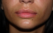 Lips After